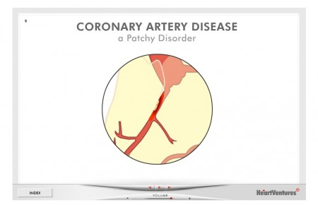 HeartVentures Coronary Artery Disease Animated Slide